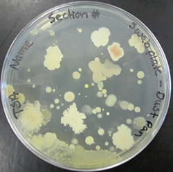 ubiquity of microorganisms lab Ubiquity of microorganisms during this lab exercise, you have an opportunity to  see some places bacteria and fungi live you may also be surprised to discover.